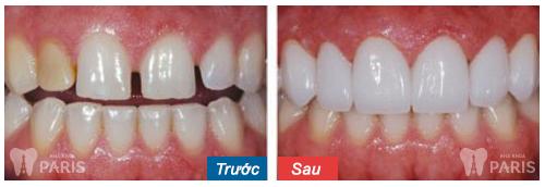 Chụp răng sứ thẩm mỹ công nghệ cao cho răng khỏe đẹp