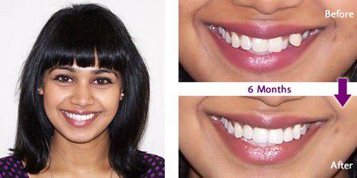 Trồng răng khểnh có bị đau nhiều không?2