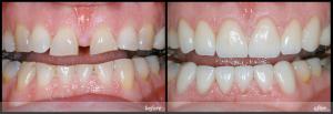 Cách làm răng đỡ thưa bằng hàn trám có hiệu quả?1