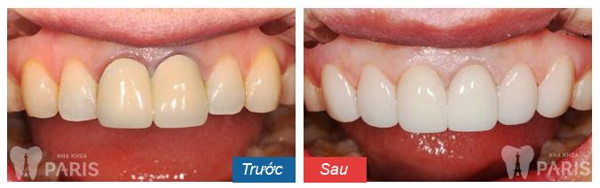 Chụp răng sứ thẩm mỹ công nghệ Nano Shining 5S 12