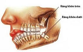 Mài răng khôn và những điều cần lưu ý để bảo vệ răng tốt nhất 1