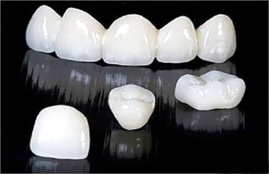 cách nhận biết răng sứ titan? so sánh răng sứ titan với răng toàn sứ