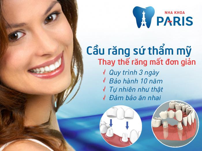 Nên làm cầu răng sứ hay trồng răng implant