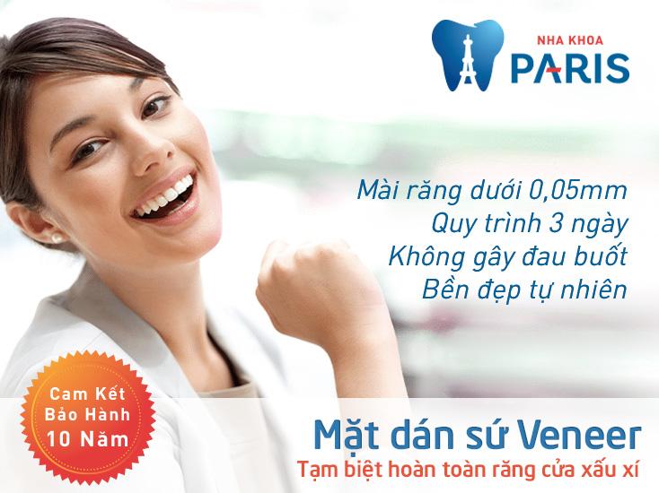 Răng sứ Veneer – giải pháp thẩm mỹ tối ưu