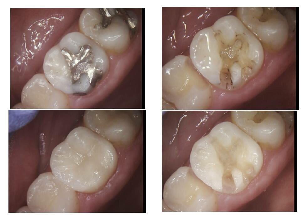 Bọc răng sứ sử dụng được bao lâu thì phải làm lại?