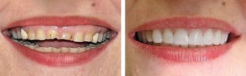 Bọc răng sứ thẩm mỹ 8