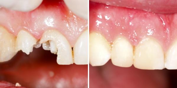 Bọc răng sứ giá bao nhiêu tiền là rẻ nhất