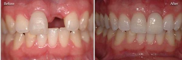 Chi phí làm cầu răng giá bao nhiêu là tốt nhất?