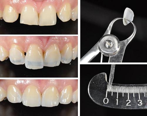 Chữa sứt răng bằng cách nào giúp phục hình hoàn hảo nhất? 2