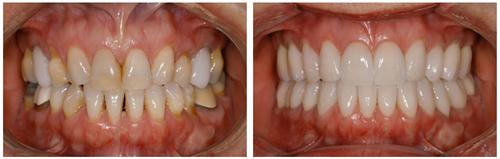 Bọc răng sứ thẩm mỹ 9
