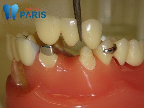 𝔾𝕚ả𝕚 đá𝕡 - Làm cầu răng sứ có tốt không từ bác sĩ nha khoa từ Pháp - ảnh 2