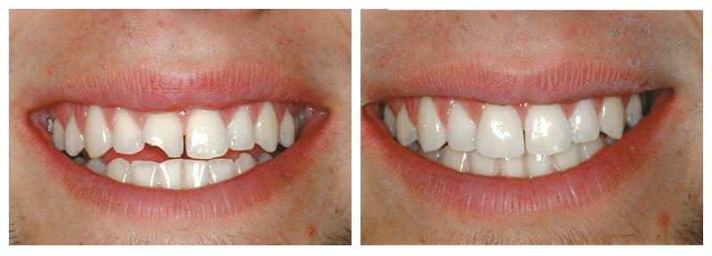 Răng cửa bị mẻ phải làm sao để khắc phục hiệu quả nhất?