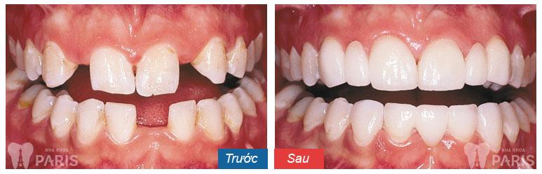 Bọc chụp răng sứ Venus bằng công nghệ Răng sứ CT 5 chiều