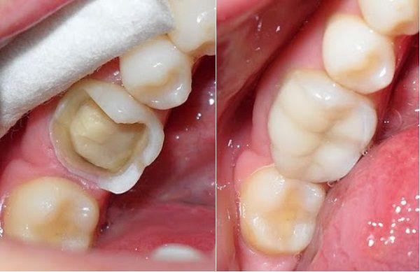 Khách hàng Nguyễn Thùy Trâm bọc răng sứ cho răng sâu bằng công nghệ Nano Shining 5S tại Nha khoa Paris