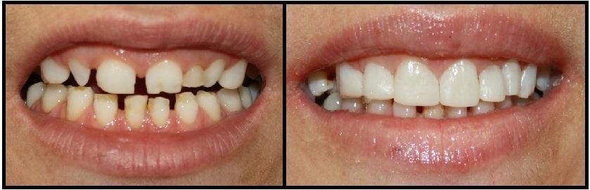Vì sao răng bị thưa và cách điều trị răng thưa nhanh nhất 3