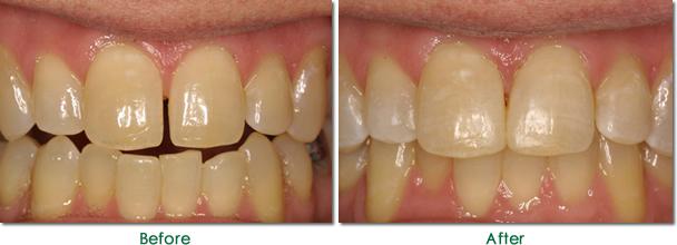 Vì sao răng bị thưa và cách điều trị răng thưa nhanh nhất 4
