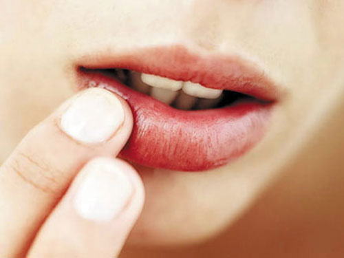 Bệnh khô miệng và cách điều trị triệt để nhất 1