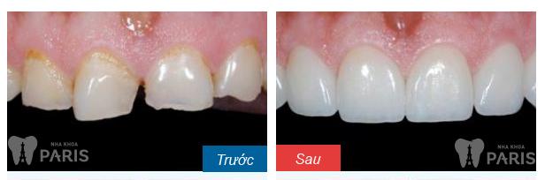 Bọc mão răng sứ giá bao nhiêu tiền là rẻ nhất?