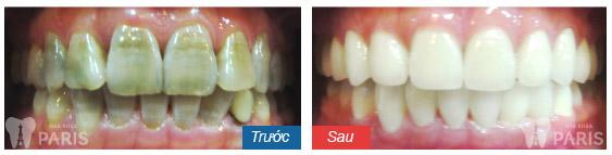 Bọc sứ cho răng nhiễm màu có hiệu quả hay không?