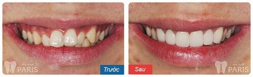 bọc răng sứ sau đó bị đau hàm