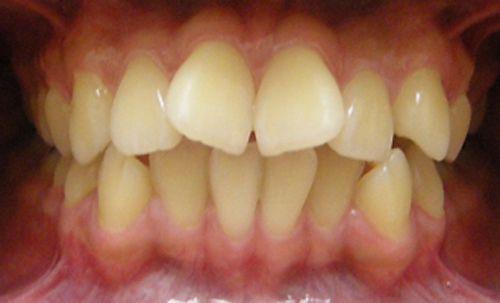 bọc răng sứ giúp làm hết vẩu răng cửa nhanh
