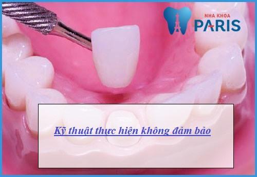 Bọc răng sứ gây hôi miệng: Nguyên nhân & Cách khắc phục hiệu quả 2