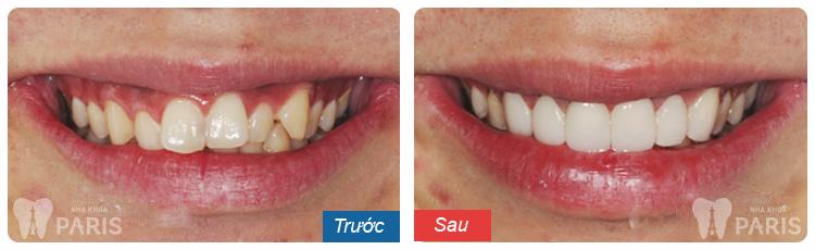 Bọc răng sứ là gì? Bọc răng sứ loại nào HOÀN HẢO nhất