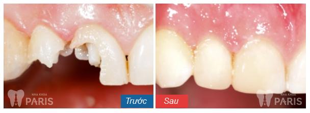 Chữa sứt răng tại nha khoa Paris