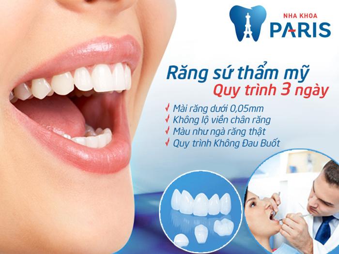 Bọc răng sứ giúp chữa sứt răng hiệu quả