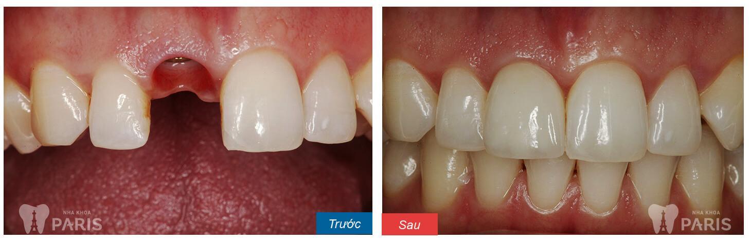 Giá thay răng cửa bao nhiêu là tiết kiệm? Bảng giá Ưu đãi 2017 1