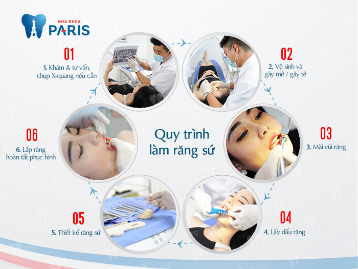 Bọc răng sứ thẩm mỹ | Bọc răng sứ theo quy trình chuẩn quốc tế