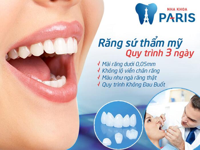 Bọc răng sứ CT 5 chiều an toàn, hiệu quả
