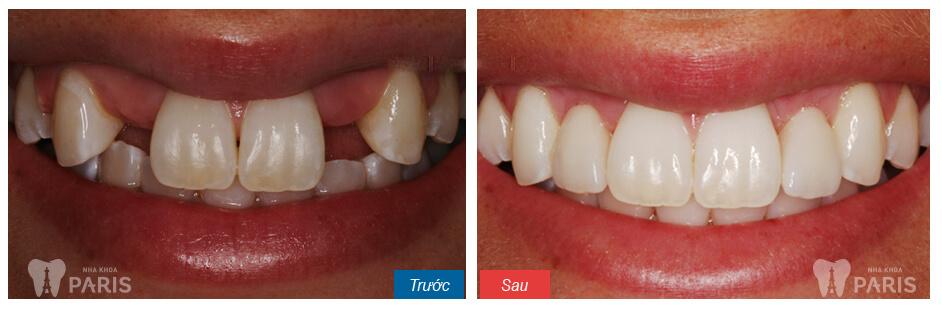 Bọc răng sứ cho răng thưa, không đều