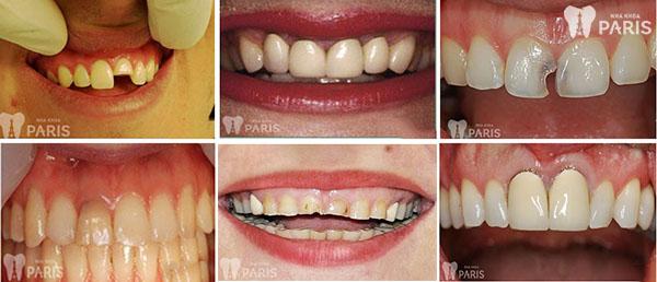 Chụp răng sứ công nghệ hiện đại