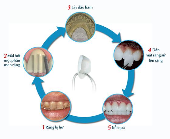 Bọc răng sứ KHÔNG cần mài răng cho hàm răng ĐỀU & ĐẸP như ý 2