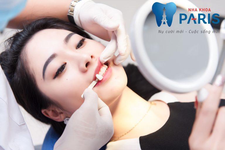 3 Lưu ý trước khi bọc răng sứ để bạn có sự chuẩn bị tốt nhất 2