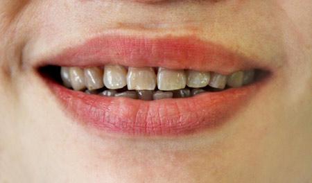 Răng nhiễm màu kháng sinh có bọc răng sứ được không? 1