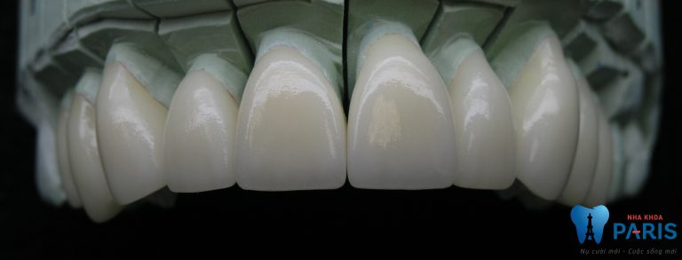 Răng sứ Nano Shining 5S phục hình răng xấu hỏng đẹp tự nhiên 3