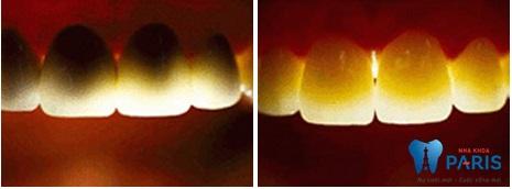 Răng sứ Nano Shining 5S phục hình răng xấu hỏng đẹp tự nhiên 4