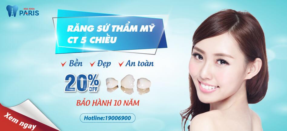 răng sứ CT 5 chiều