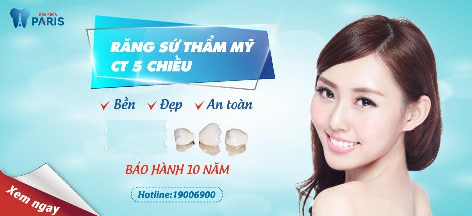 Chữa răng cửa vẩu bằng bọc răng sứ ct 5 chiều