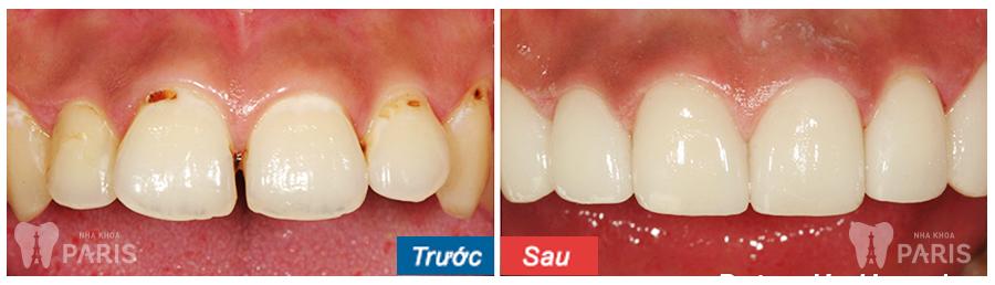 Bọc răng sứ ở đâu tốt nhất và chất lượng đảm bảo - Bạn đã biết? 1