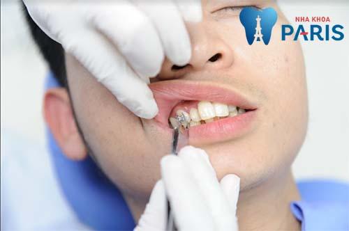 Làm thế nào để răng bớt vẩu 2