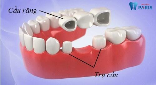 Làm cầu răng có đau không? Giải đáp từ chuyên gia tư vấn 1