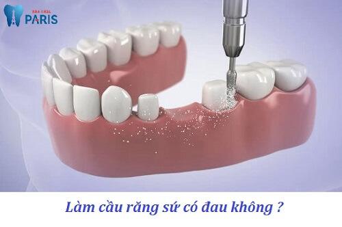 Làm cầu răng có đau không? Giải đáp từ chuyên gia tư vấn 2
