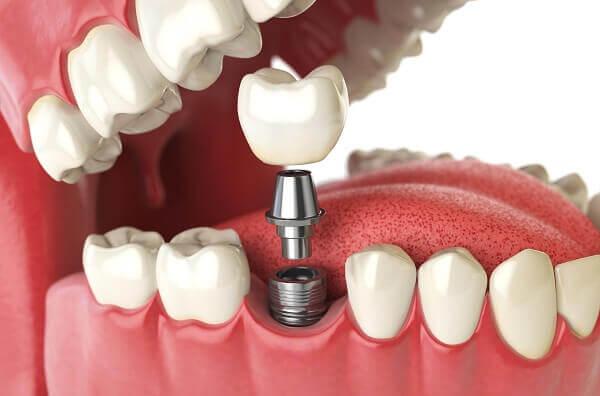 Làm cầu răng có đau không? Giải đáp từ chuyên gia tư vấn 3