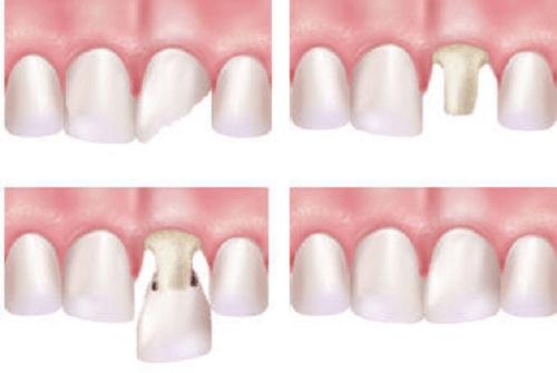 Sau bọc răng sứ bị nhức - Nguyên nhân và cách điều trị hiệu quả triệt để 2