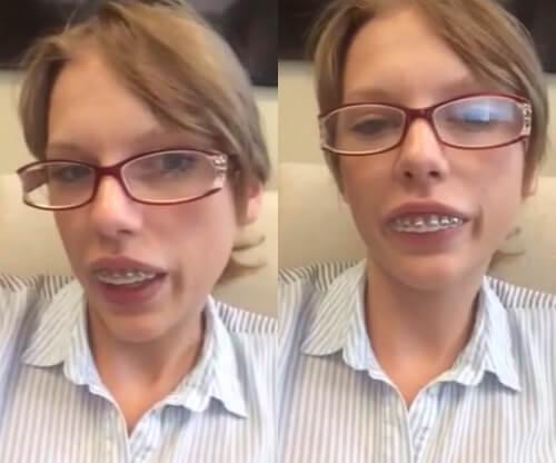 Đã tìm ra: Cách chữa răng bị vẩu hoàn hảo nhất trong nha khoa 2