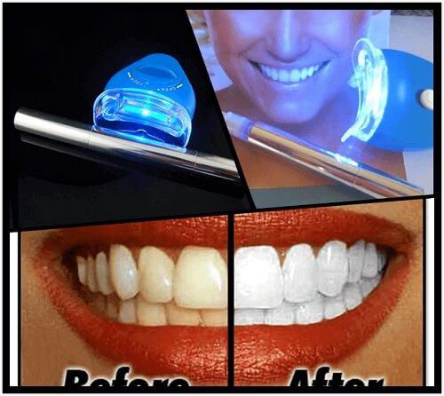 Tẩy trắng răng bằng đèn Plasma có hại không