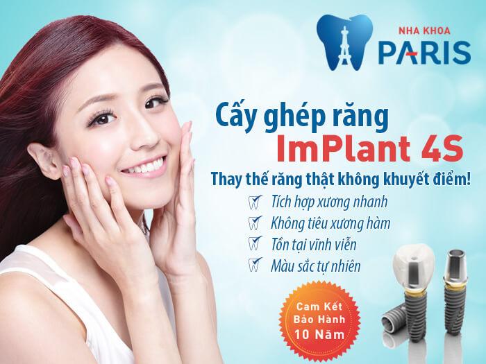 Trồng răng có đau không bằng cấy ghép Implant